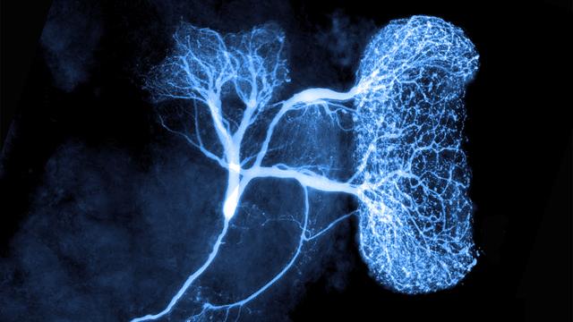 Giant_neuron_mushroom_body-thumb-640xauto-21674